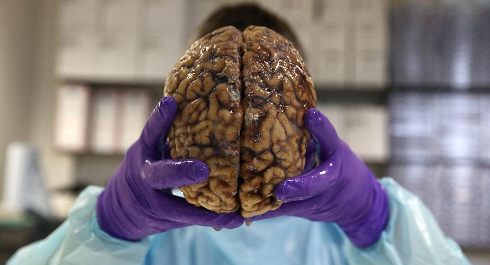 شاب يجمد دماغ أمه أملا بأن يستطيع العلم إعادتها للحياة مستقبلا...