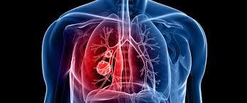 كشف السبب الرئيسي لإصابة غير المدخنين بسرطان الرئة