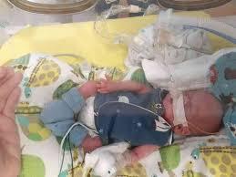 أصغر طفل في العالم ..لمسة اعادة له الحياة !!