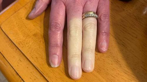 اضطراب نادر يحول لون أصابعها للأبيض